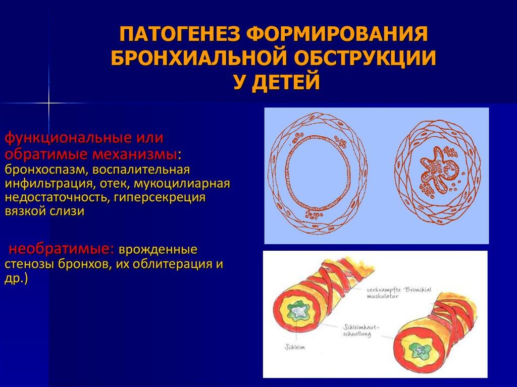 Лечение народными средствами сотрясения головного мозга у