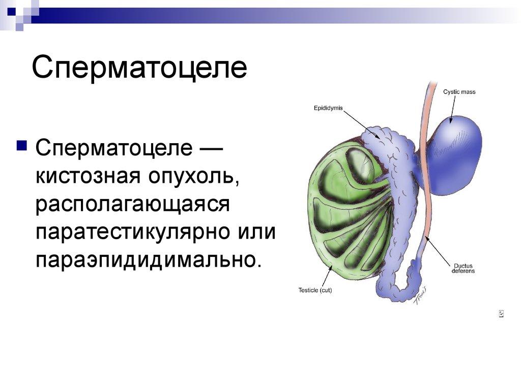 spermatsele-chto-takoe