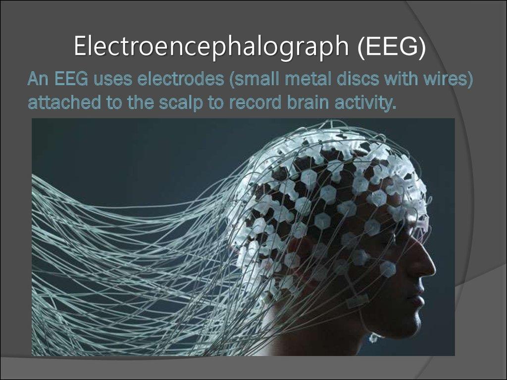 encephalitis п�езен�а�ия онлайн