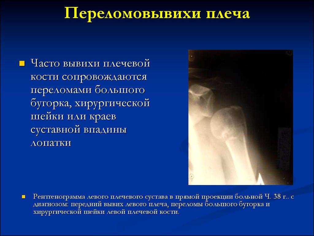 Код по мкб 10 ушиб плечевого сустава