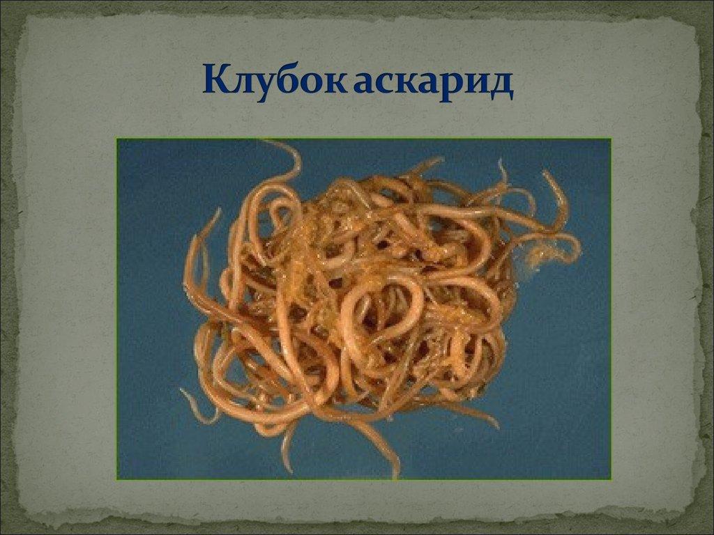 описторхоз фото паразита у человека