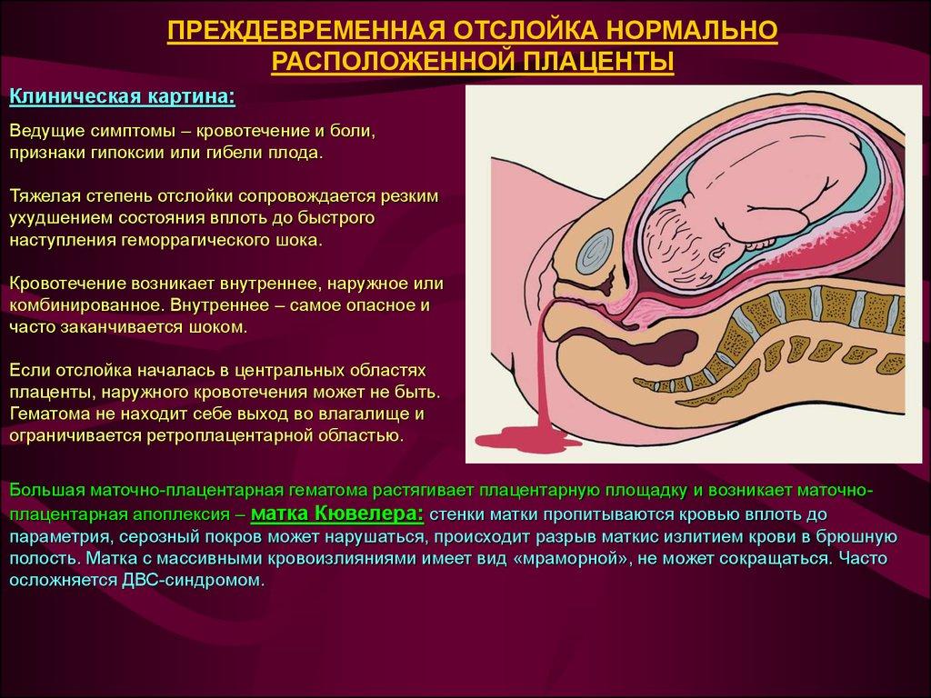 Лечение орз у беременных на ранних сроках 99