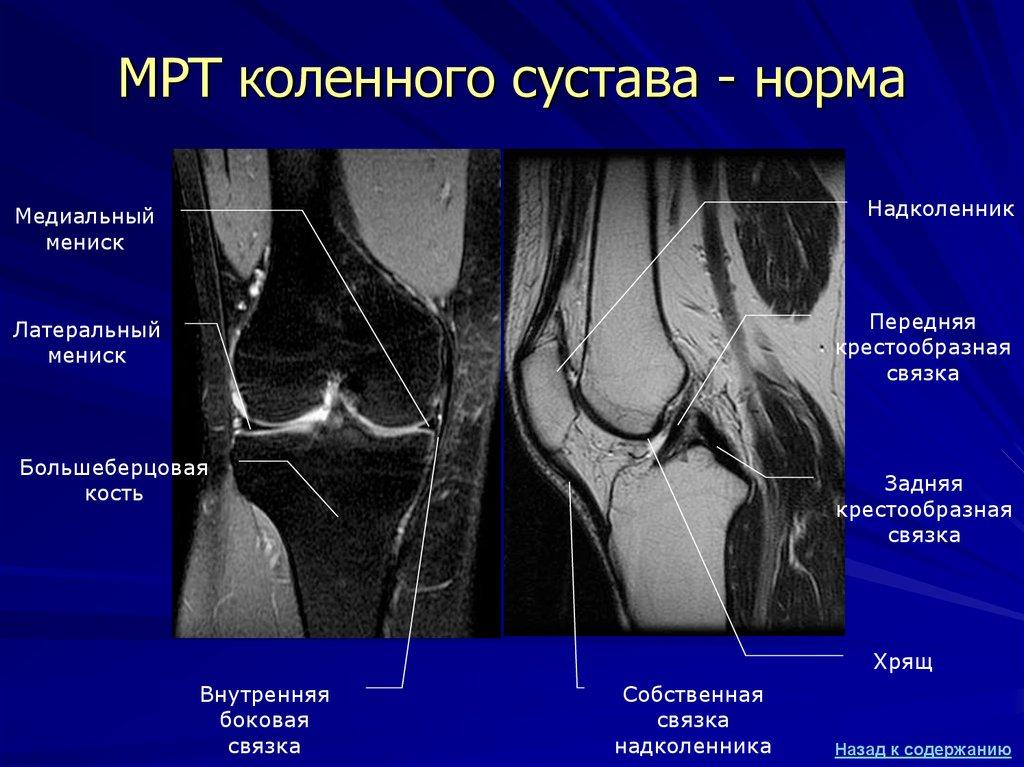 ревматоидный артрит коленного сустава 3 стадия при мрт