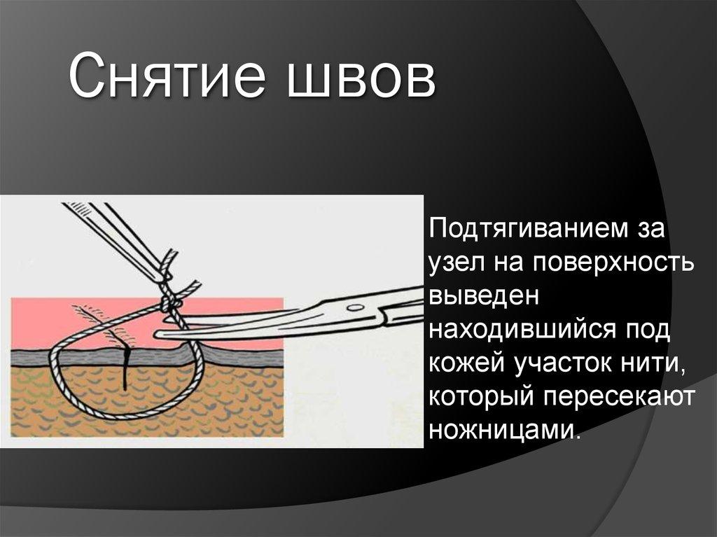 Снять швы в домашних условиях на ноге