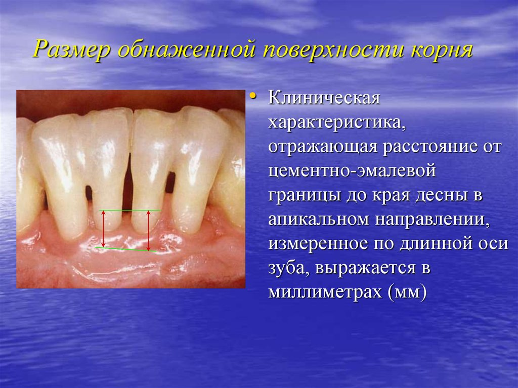пародонтоз неприятный запах изо рта