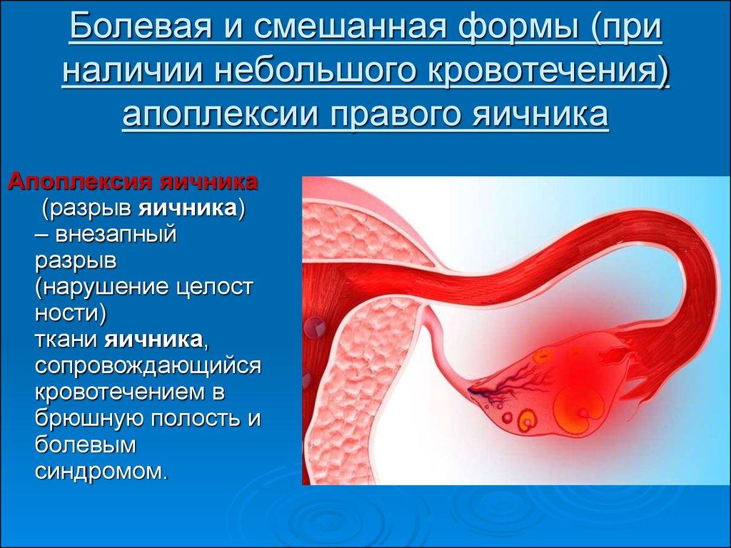 Дифференциальная диагностика острого аппендицита с гинекологической и урологической патологией - презентация онлайн