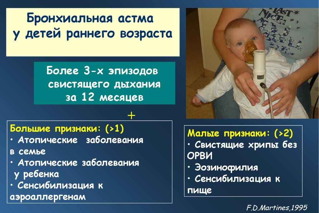 бронхиальная астма особенности у детей