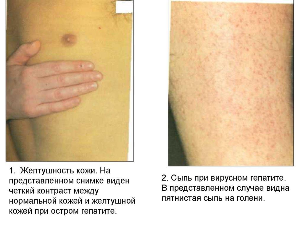 коапивница при заболевании кишечника лицо: Адрес: область