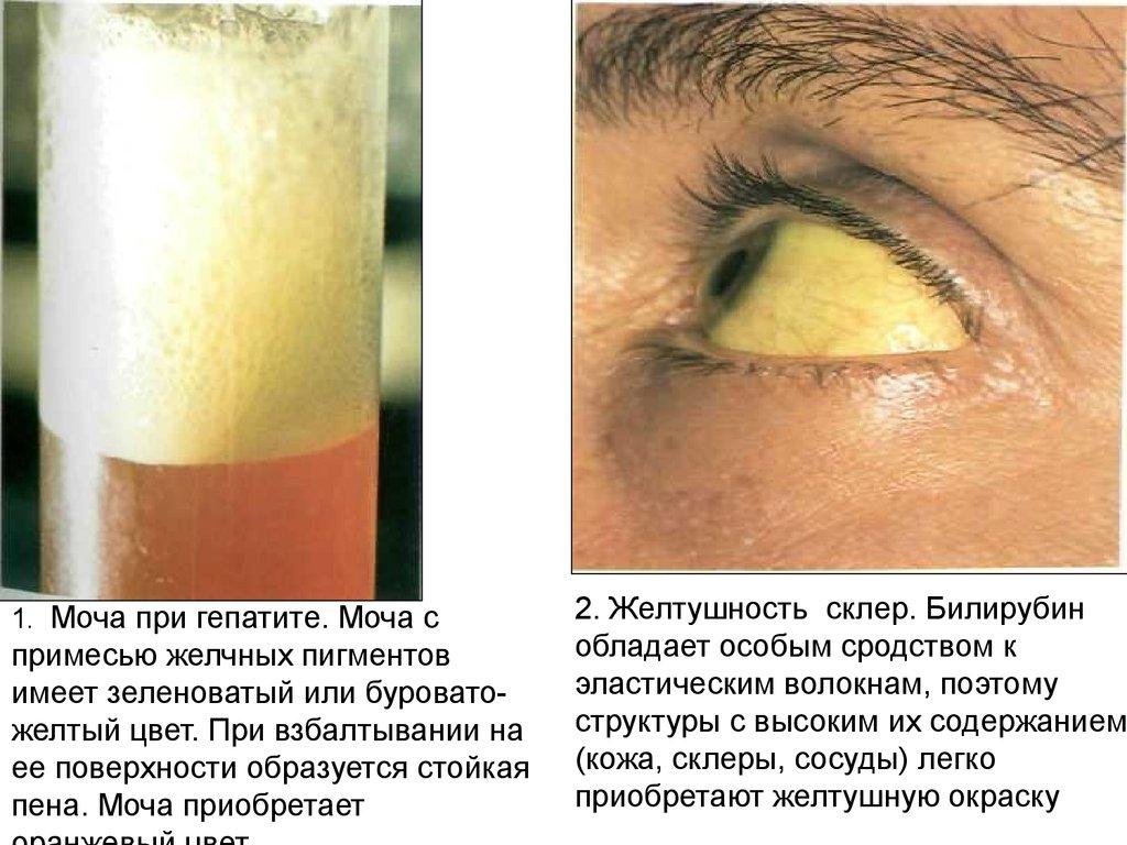 Желтушность кожи при каком билирубине