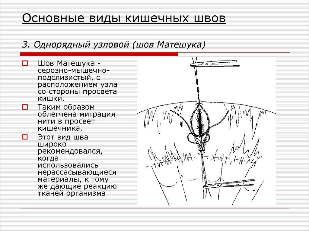 хирургические операции виды презентация