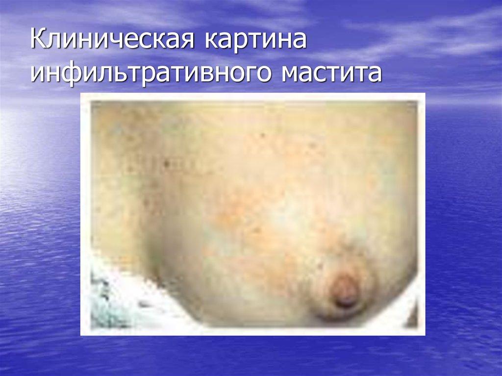 Уход за больными с повреждениями и заболеваниями грудной клетки и молочной железы - презентация онлайн