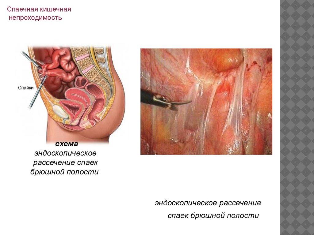 Абляция эндометрия отзывы