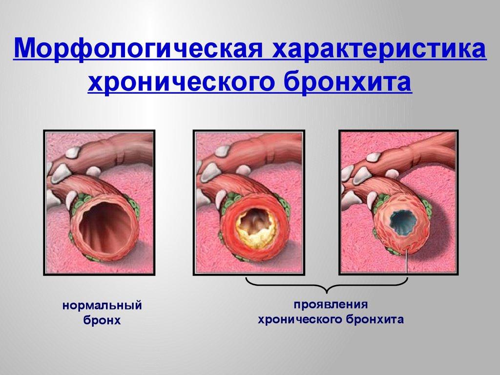 Эффективный метод лечения рака щитовидной железы