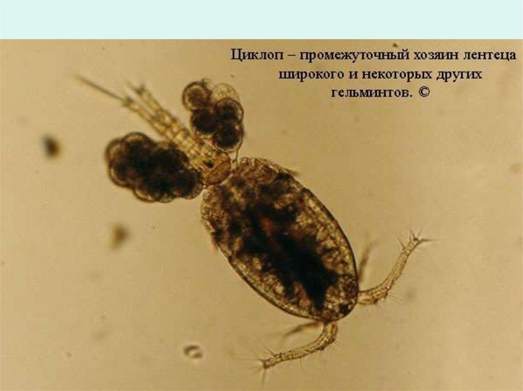 вывести паразитов из организма препаратами у взрослого