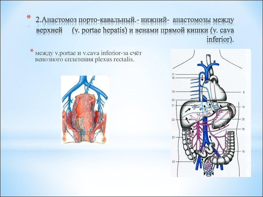 V portae hepatis for V portae hepatis