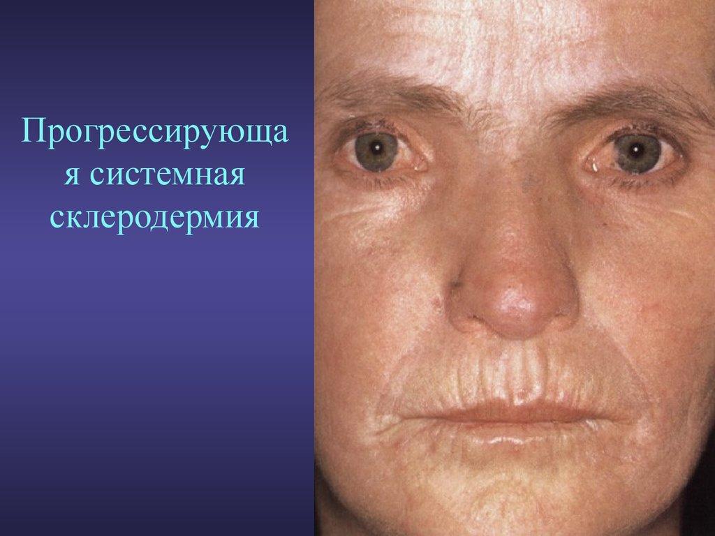 Лечение метеоризма с болями