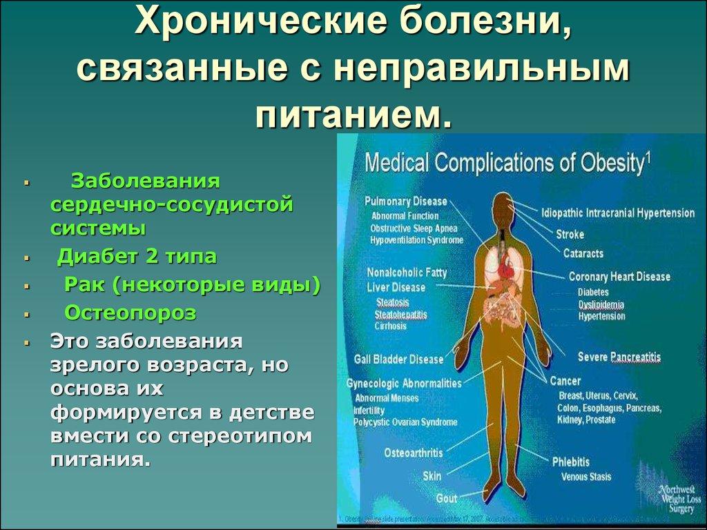 Болезни связанные питанием