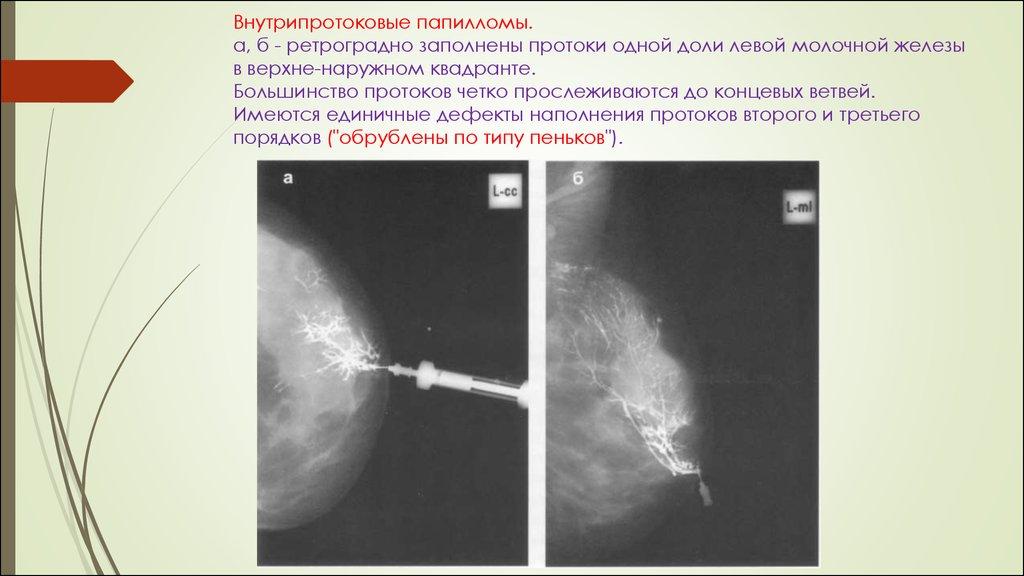 Внутрипротоковая папиллома лечение операция - Внутрипротоковая папиллома молочной железы симптомы и.