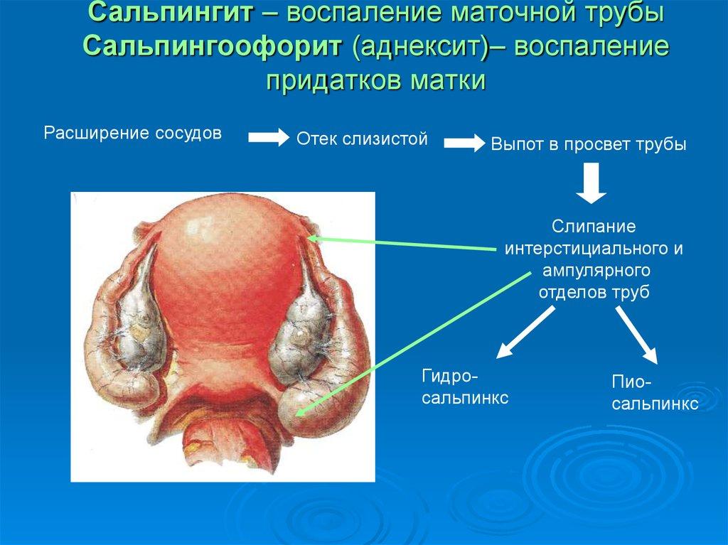 Воспалительные заболевания женских половых органов - презентация онлайн