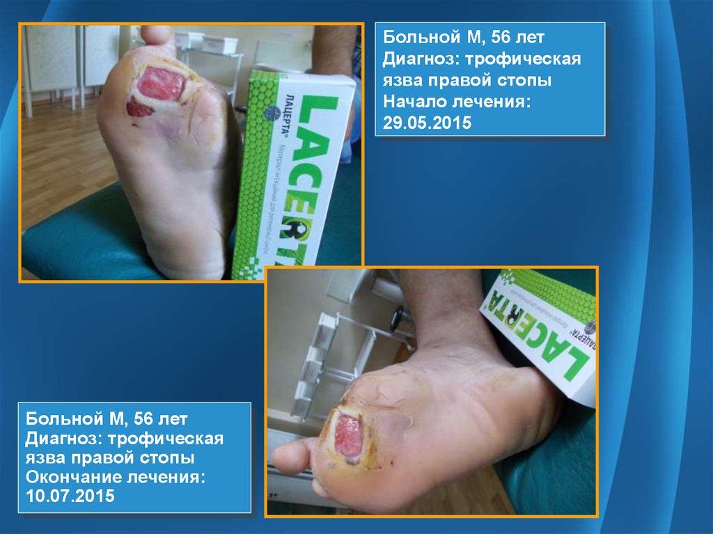 Сахарный диабет уход крем для ног