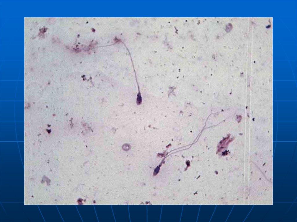 nepodvizhnost-spermatozoidov-u-muzhchin