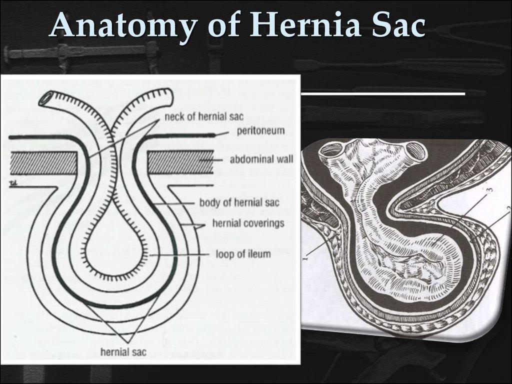 Anatomy of hernia