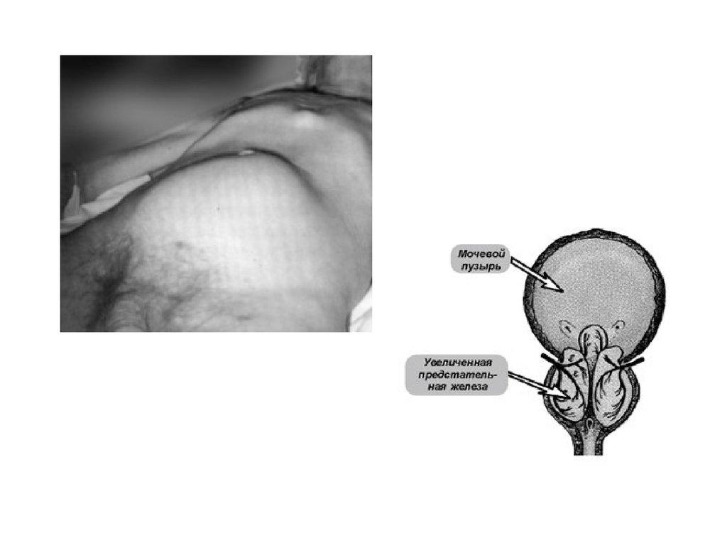 Как лечат субатрофию зрительных нервов