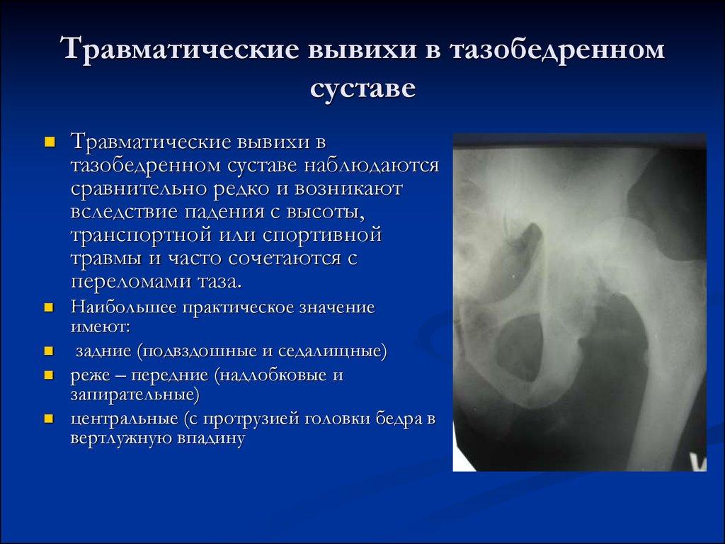 информация вывех суставов