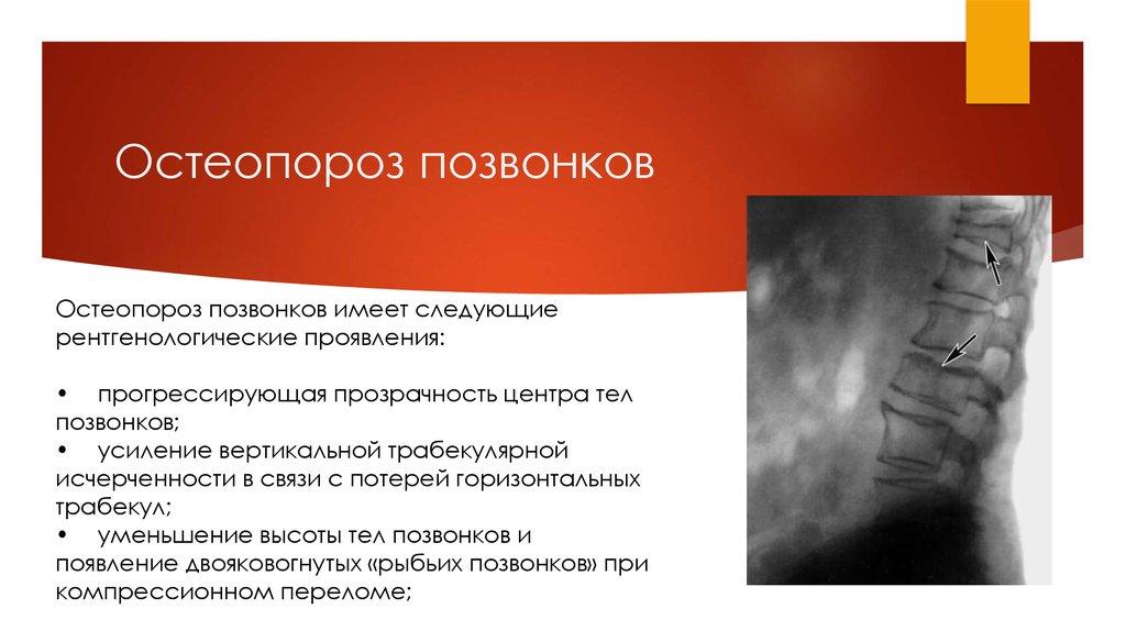 Остеопороз позвоночника отзывы