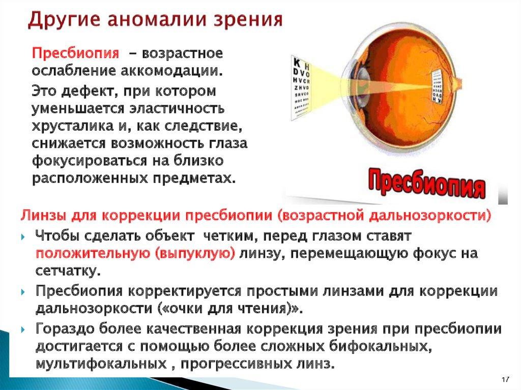 Что такое пресбиопия коррекция зрения при пресбиопии