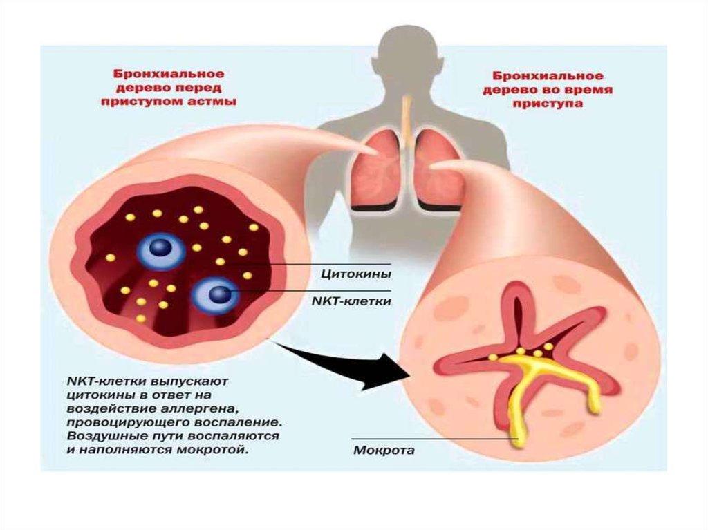 бронхиальная астма микроклещи домашней пыли