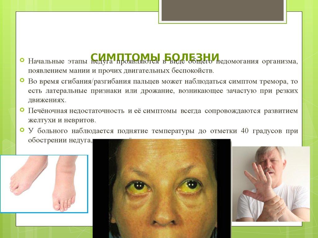 медицинский запах изо рта у ребенка