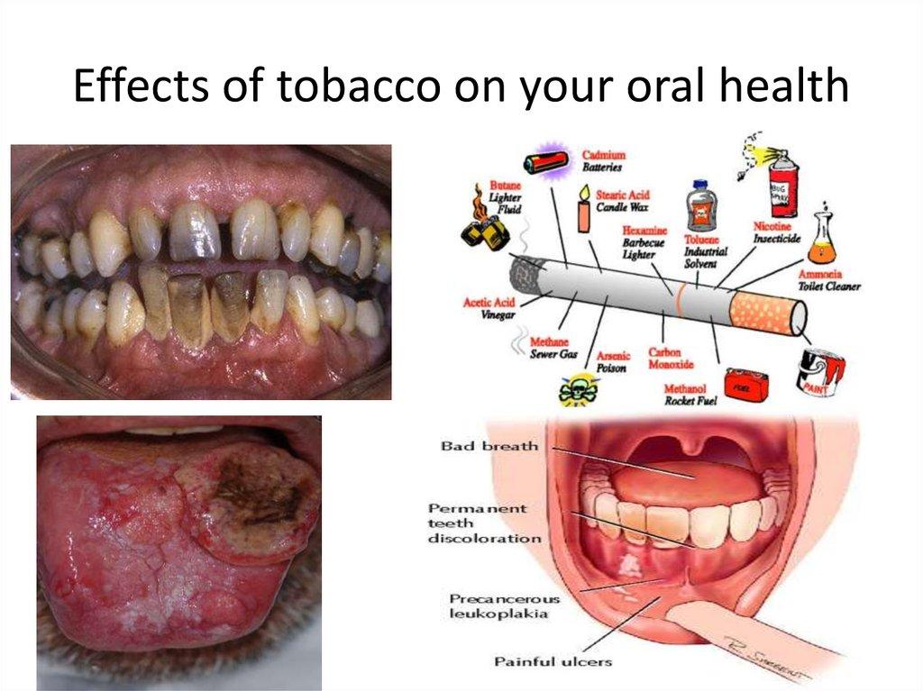 что будет если чистить зубы активированным углем
