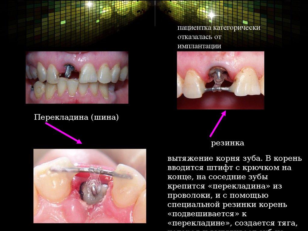 Обследования при заболеваниях зубов