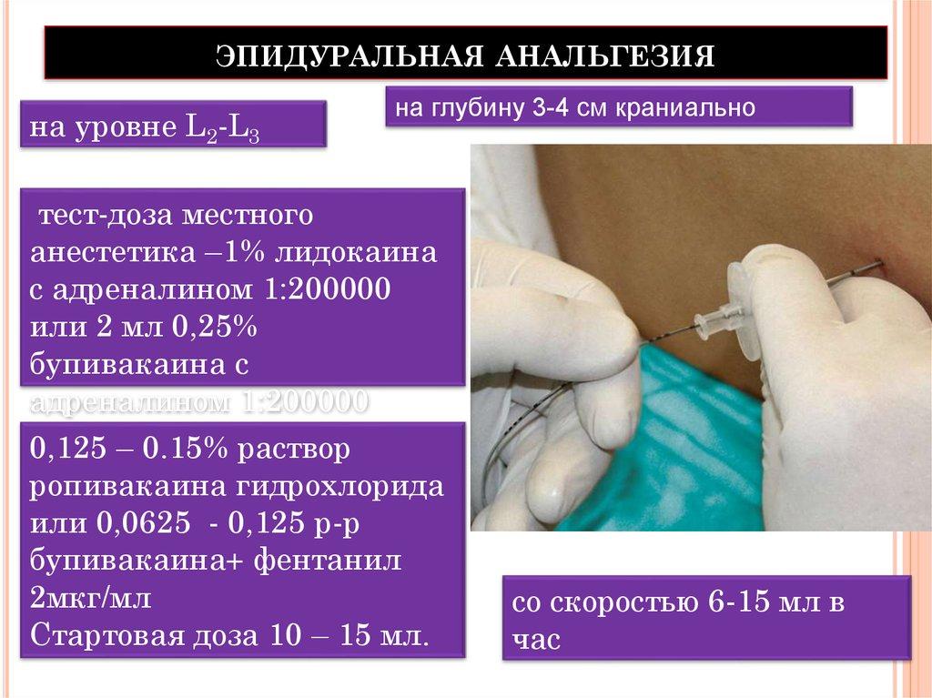 эпидуральная анальгезия в родах отзывы-фш1
