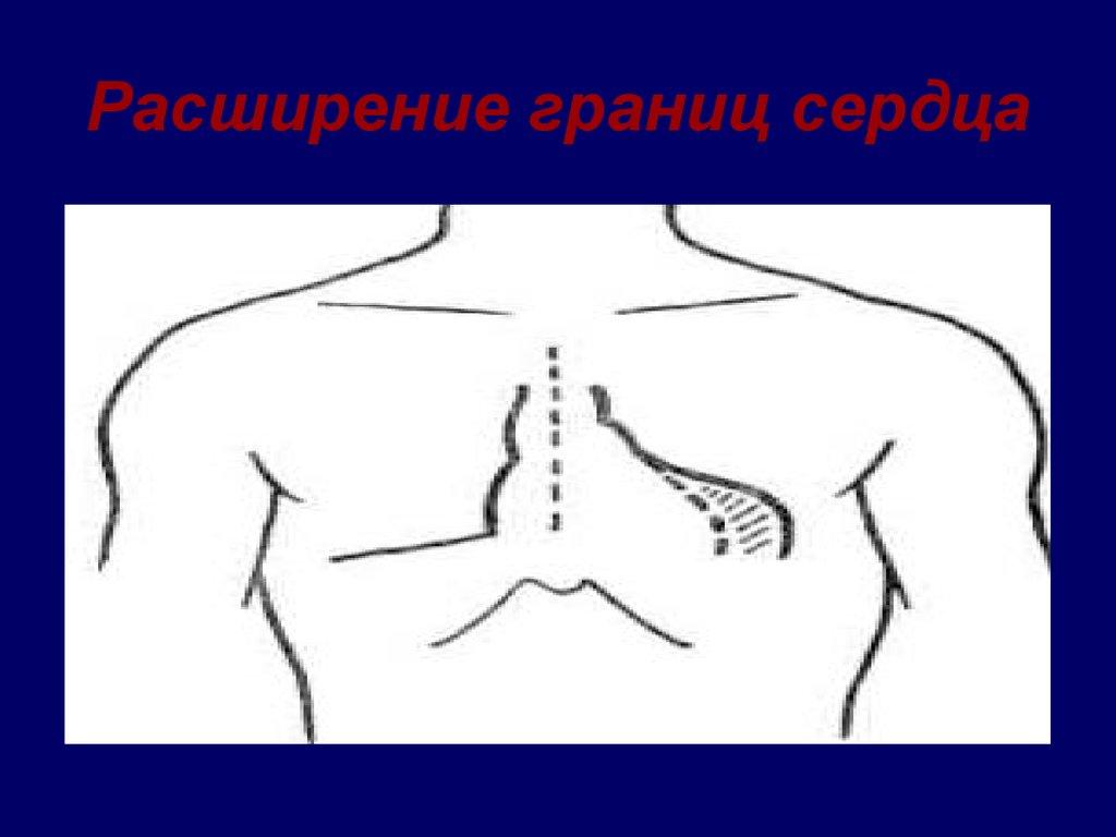 код по мкб 10 деформация коленных суставов