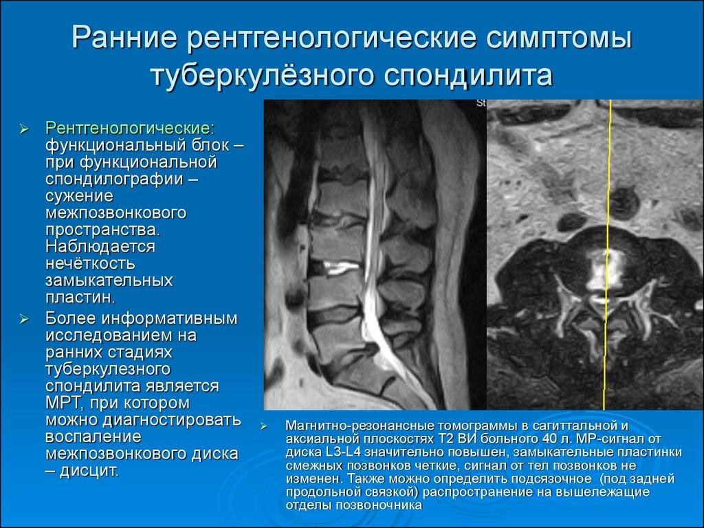 Артроз реберно позвоночных суставов лечение