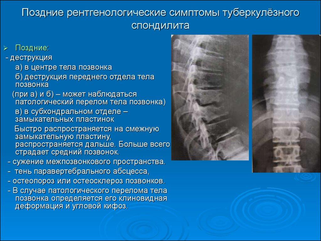 Боли в костях врач 85