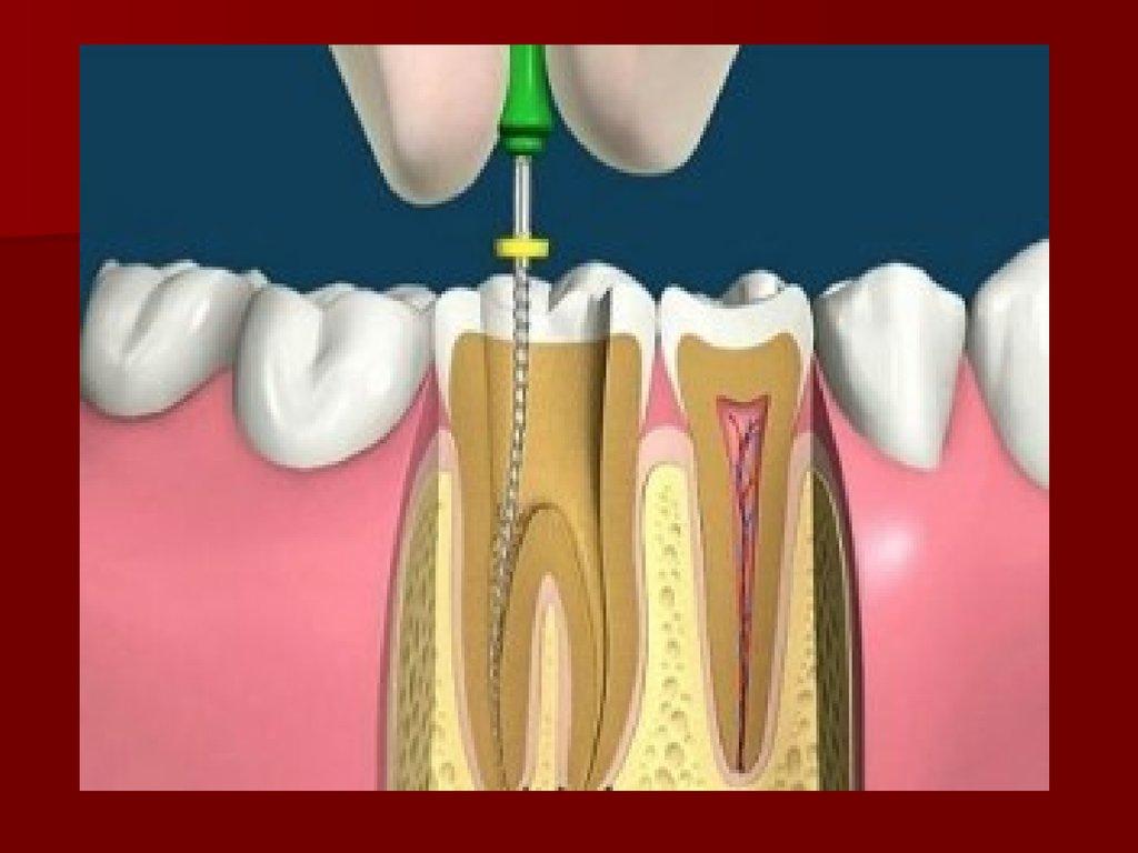 Что происходит с зубом после удаления нерва