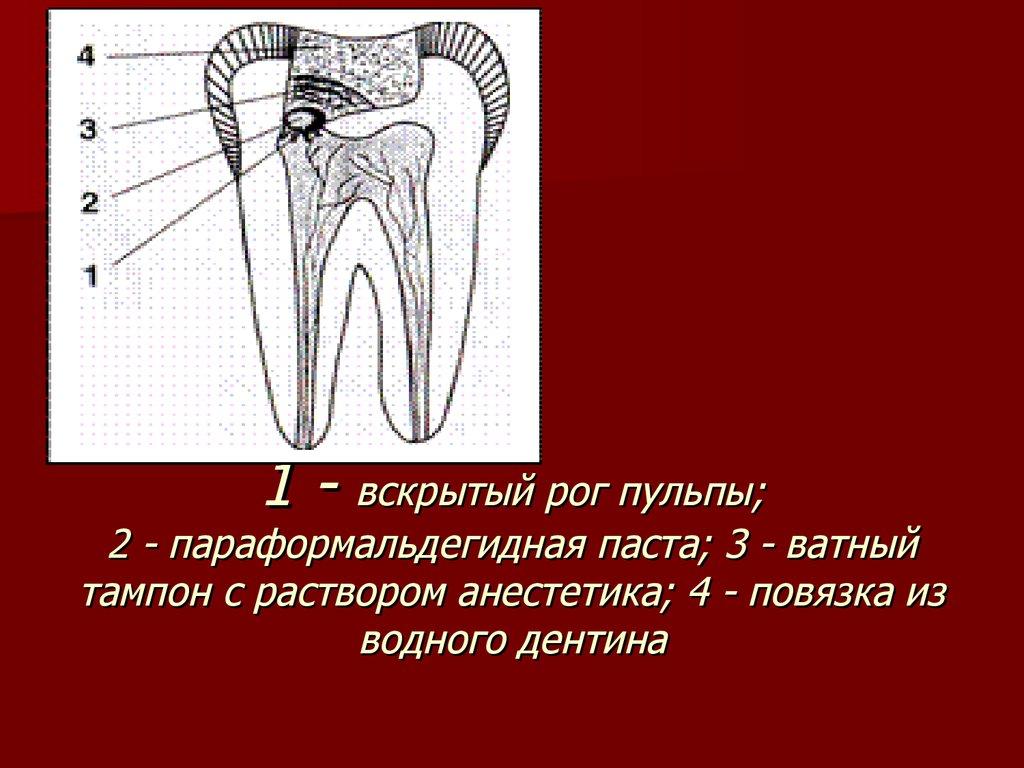 Девитализация пульпы зуба что это такое