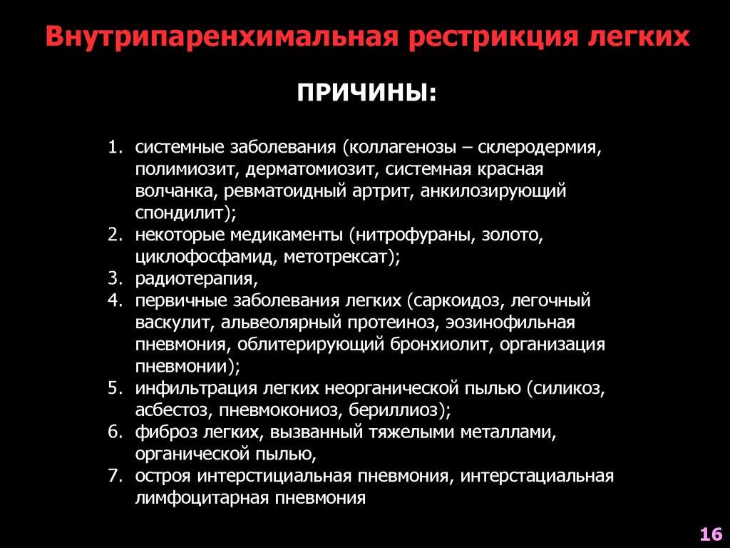Спондилит Анкилозный