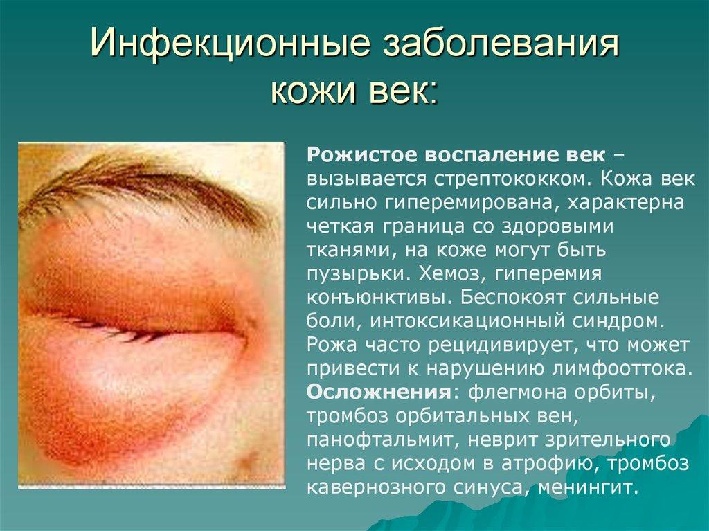 кожные заболевания их симптомы и фото