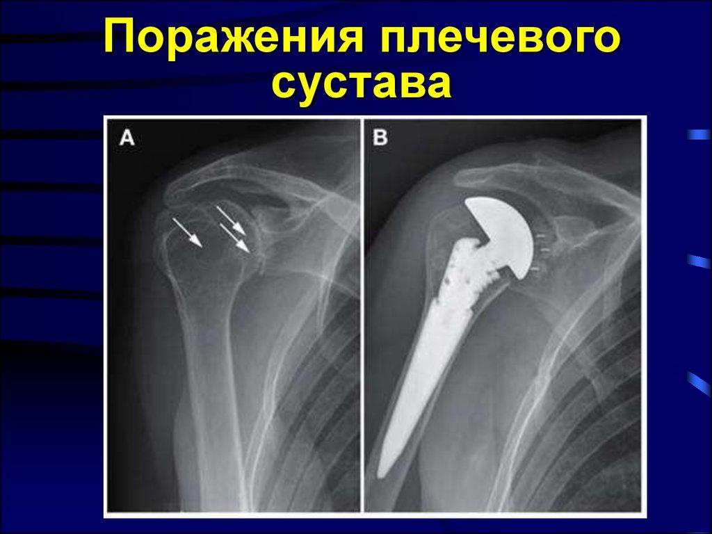 артроз плечевых суставов бокс