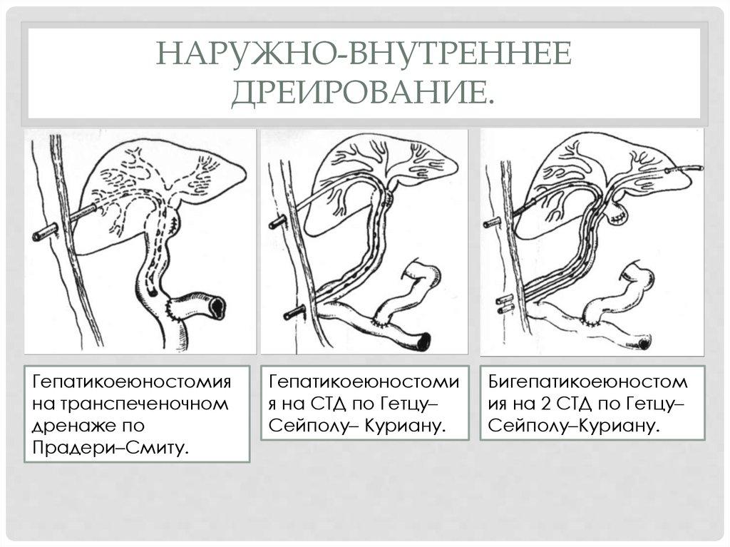 Ревматоидный артрит симптомы лечение диагностика у взрослых