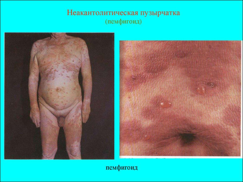 Псориаз волосистой кожи головы диагностика