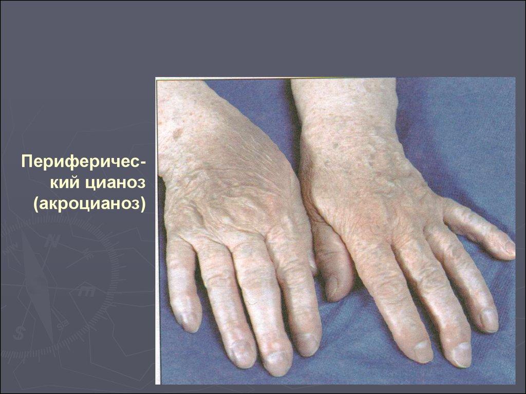 Болит горло или в бронхах
