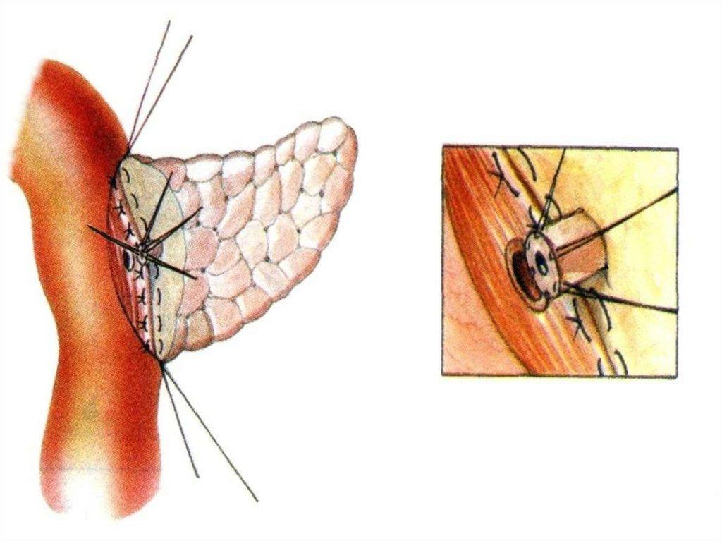 рефераты по узи диагностике брюшной полости