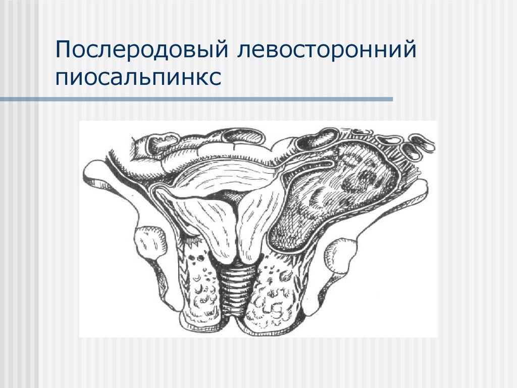 Пиосальпинкс