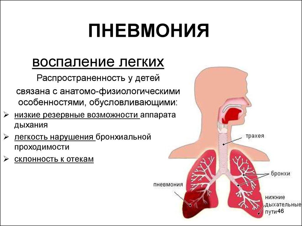 Как лечить воспаления лёгких в домашних условиях 782