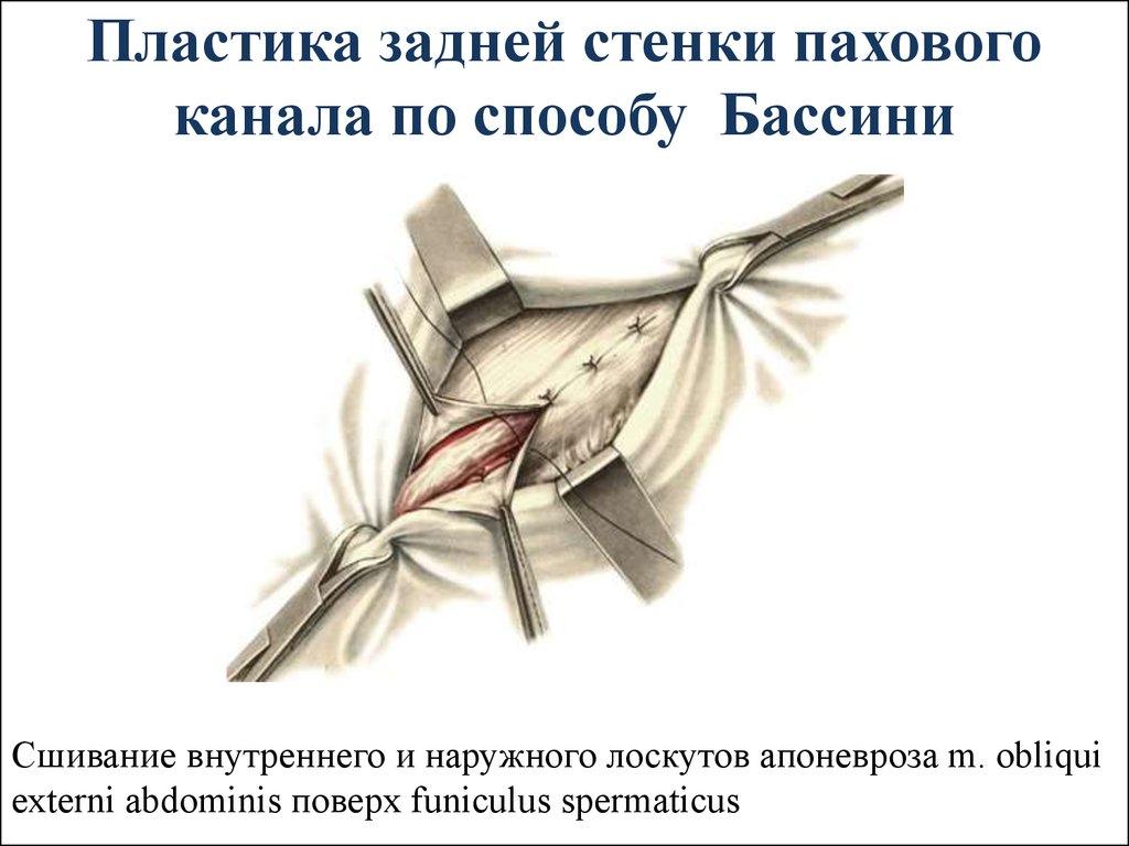 intimnaya-plastika-stenok-vlagalisha